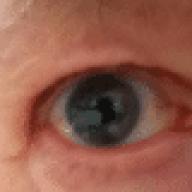 eyeball652009